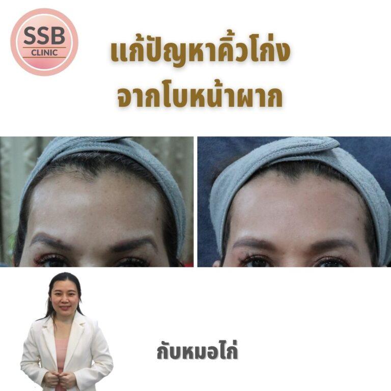 ิbotox forehead ssbclinic